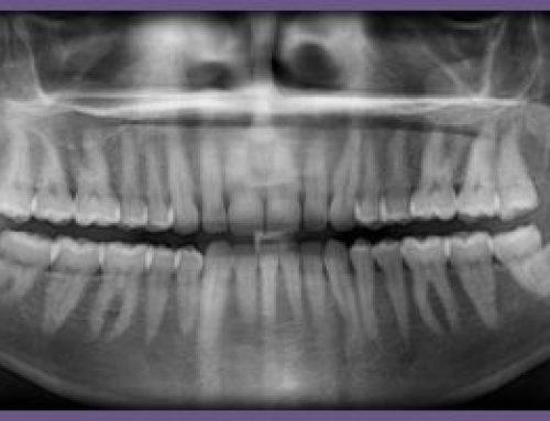 Jak należy przygotować się do badania tomografem?